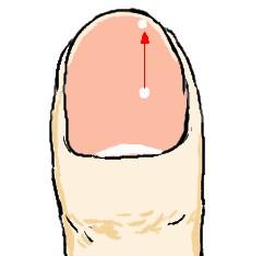 爪の上の白点