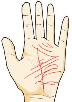 手のひらに大量の線がある(ストレス線)