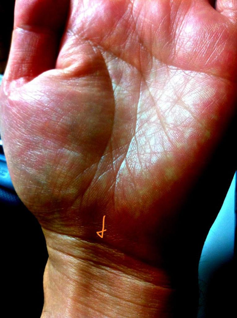短い生命線と鎖状態の手首線(写真解説)