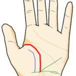 (死相)強力な生命線と火星線を持つが、ある時期に健康線・放縦線により切られている手相