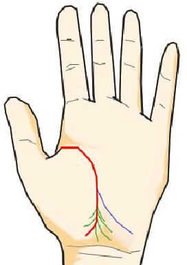 生命線の末端に生じた細かい分岐線(消耗線・疲労線)
