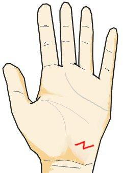 Z型の放縦線