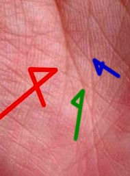 運命線に対し補佐する生命線の支線(写真解説)
