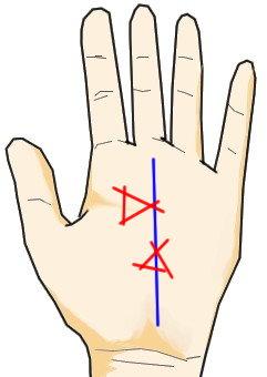 運命線上に生じる△三角の記号