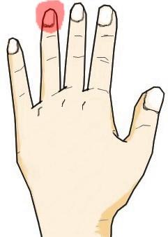 薬指の爪に生じる黒点・白点
