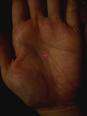 頭脳線付近で止まる運命線(写真解説)