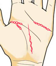 手相と記号と鎖状