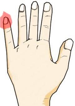 小指の爪に生じる黒点・白点
