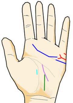 結婚線の末端がY字に別れる(離別線)と感情線の切れと影響線の関係