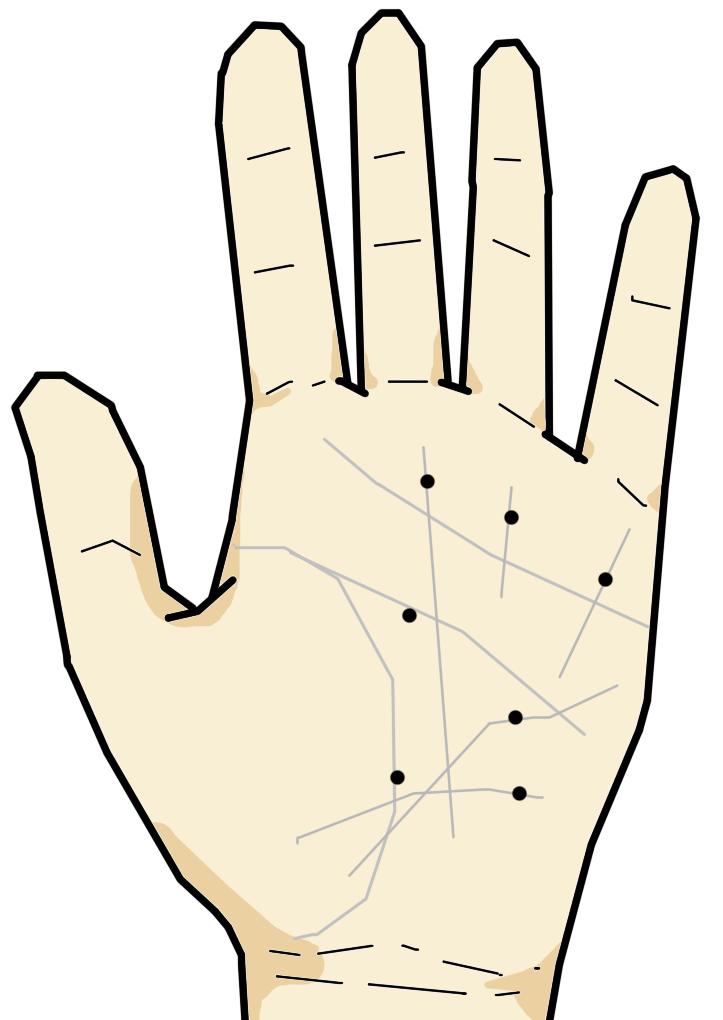 手相ではホクロ・シミの類は悪相とされています。  線の上に現れるホクロなども同様に悪相とされ、その線の意味を「汚す」意味合いがあります。