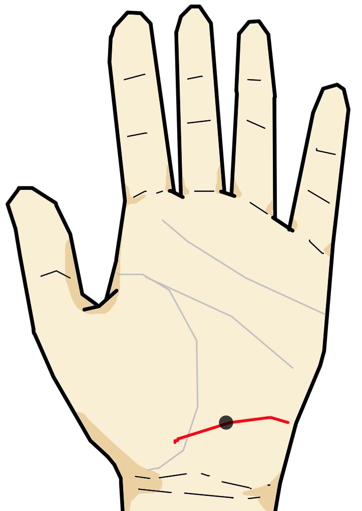 ・放縦線上のホクロ・シミ  放縦線は手首線よりやや上の掌に横向きに刻まれる線です。肝臓・腎臓などの疾患が進むと現れ始める線で、酒・タバコ・砂糖の過剰摂取・強いストレスによる負担が現れてきます。放縦線上にホクロ・シミが現れると、内臓の病気により悪性の腫瘍の恐れがあります。