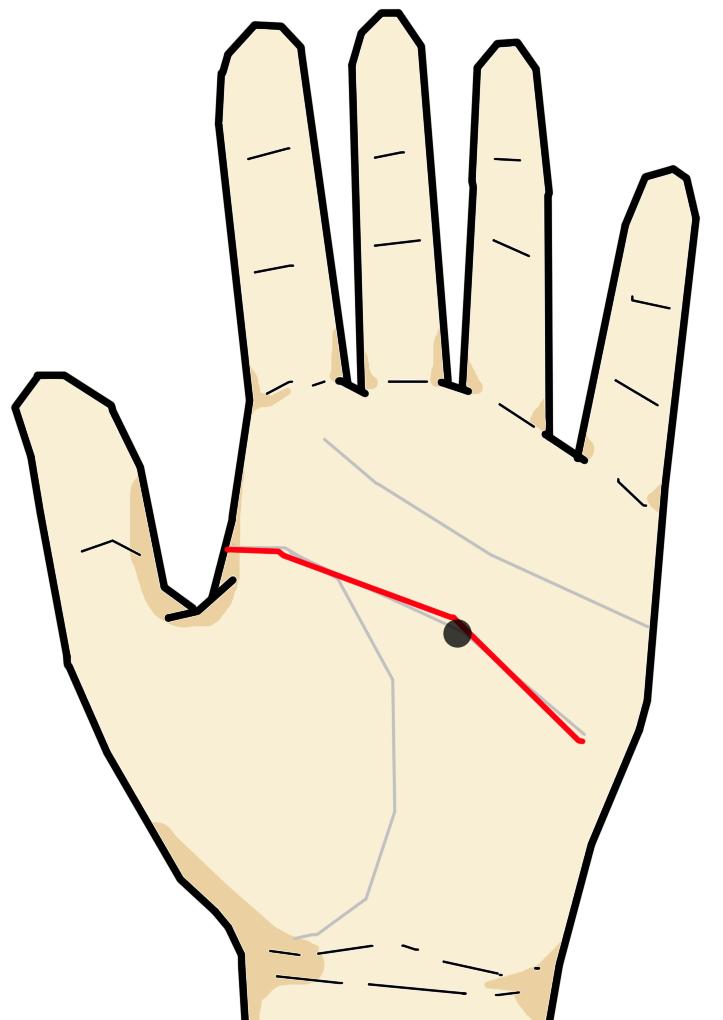 ・知能線上のホクロ・シミ  知能線は掌中央を横~斜め向きに横切る線です。知能・才能・考え方・頭部の状況を意味する線です。知能線にホクロ・シミが生じている場合、頭部に関する悪性の腫瘍や脳・目の疾患を意味します。