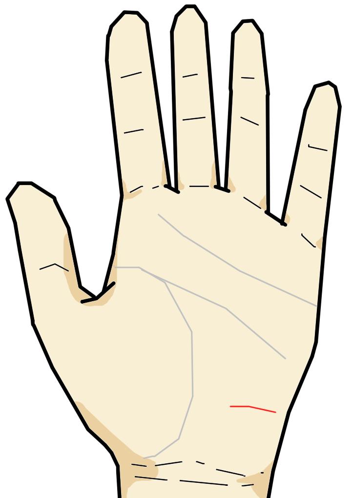 放縦線が出ているが短く薄い  放縦線は長期間に渡る不摂生により生じてくる線です。健常者の場合は放縦線がありませんが、夜ふかしや残業、投薬などを続けていると、放縦線が生じてきます。