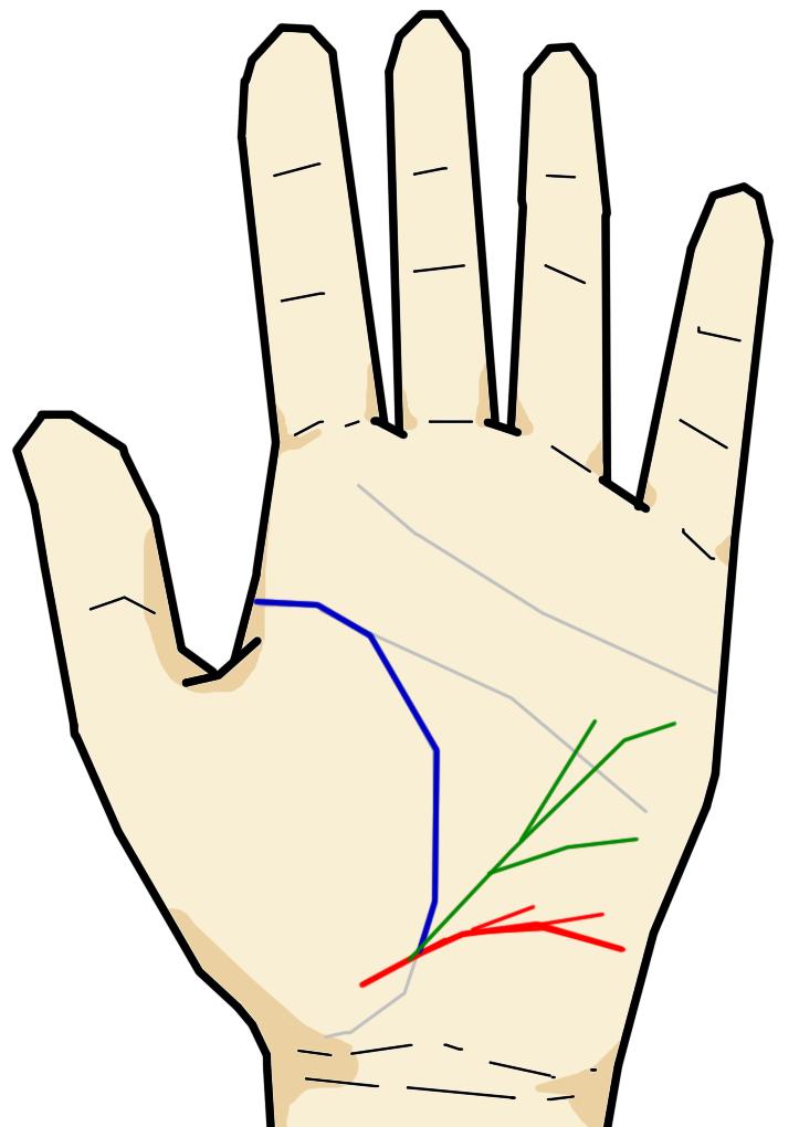 放縦線と健康線が出ている  放縦線は長期間の不摂生により内臓にダメージが蓄積されている相です。健康線は呼吸器系や循環器系・消化器系にダメージが蓄積されている場合に現れる相です。この2つの線が同時に現れていると、生命が脅かされるほど体に負担がかかっている状態といえます。この2つの線が現れ生命線を切ると、切られている生命線の流年法の年齢に死亡すると言われています。