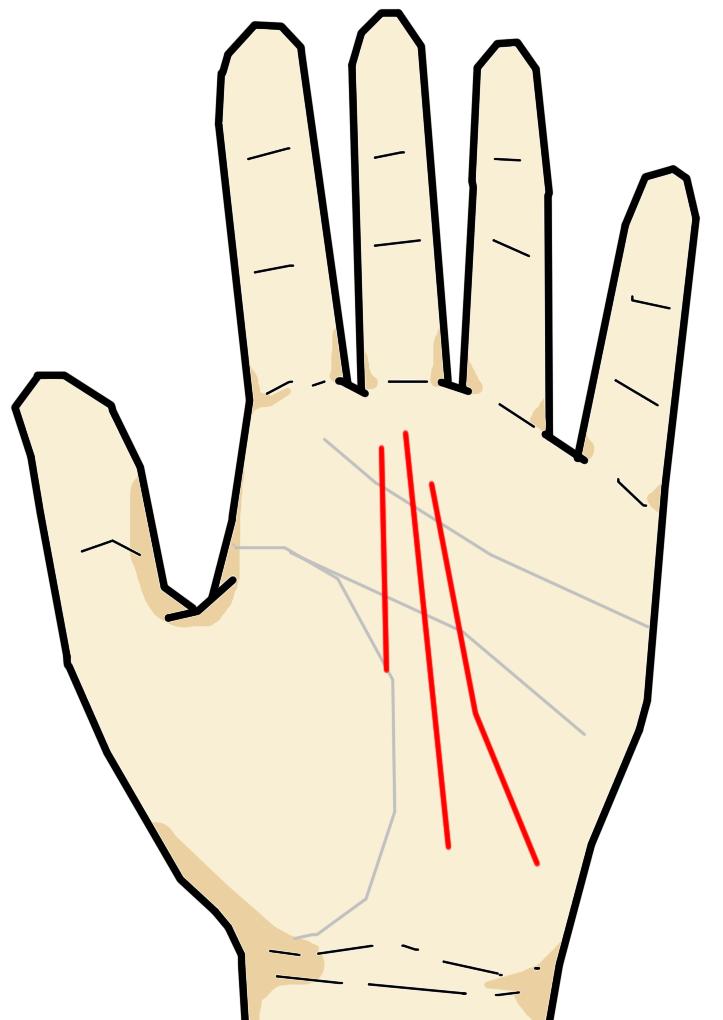 運命線  運命線は中指の付け根である土星丘へと向かう線の総称です。手首付近から土星丘へと向かい、手首側を若年、中指側を晩年と見ます。