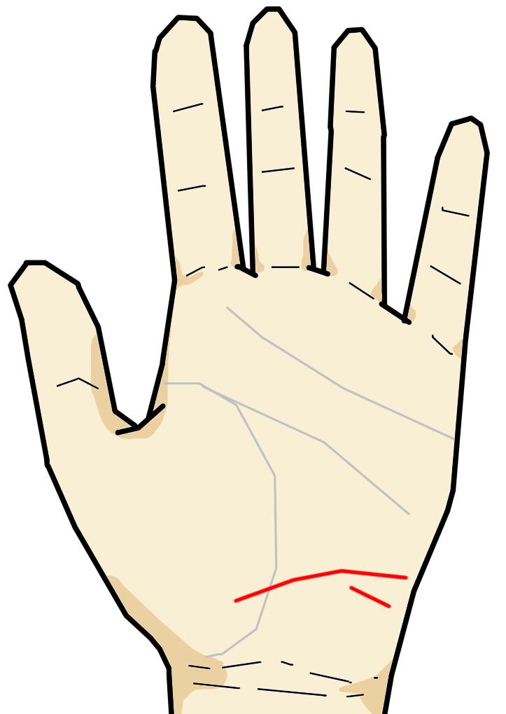 放縦線は手首の上、月丘下部に生じる横向きの線です。長期に渡る不摂生が原因で内臓を痛めている場合に生じる線で、内臓の疲労の度合いに応じて線が強く太く伸びていくのが特徴です。
