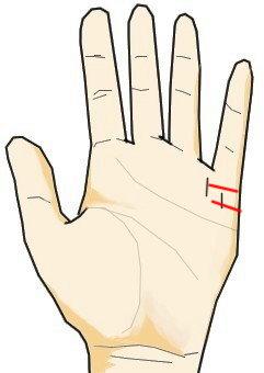 結婚線に対する障害線  結婚線は小指下に手の側面から生じる線で、結婚・恋愛・出会いに関する線です。結婚線に障害線が生じた場合、結婚・恋愛生活上でのトラブルを意味します。具体的には離婚・破断・関係の悪化・不倫関係のバレなどです。
