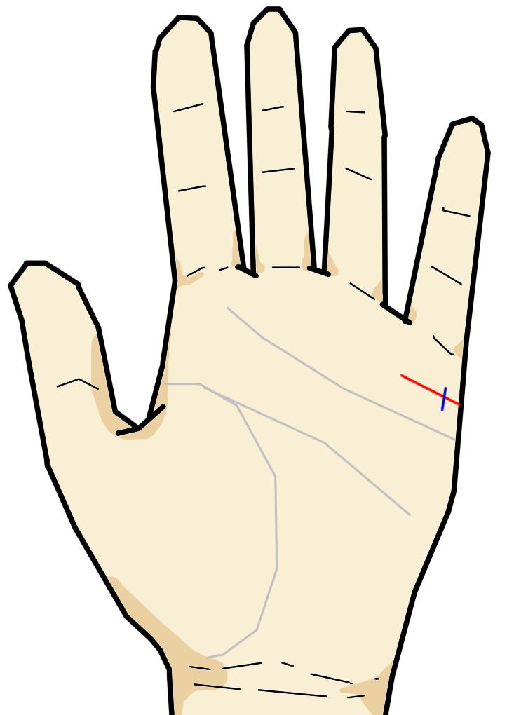 ・結婚線の起点部位に妨害線がある 結婚線の起点部位は、出会った相手との初期の状態を意味します。妨害線がある場合、出会いの初期段階でのトラブルを意味します。妨害線を抜けた後、結婚線が明瞭ならば、トラブルを超えることができるでしょう。