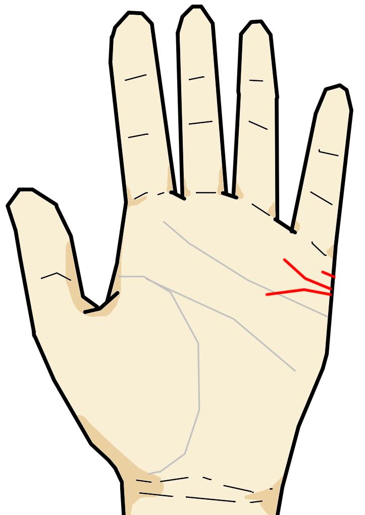 結婚線は小指の付け根である水星丘に横向きに生じる線です。結婚・恋愛・出会いの時期・結婚後の関係を意味する線です。