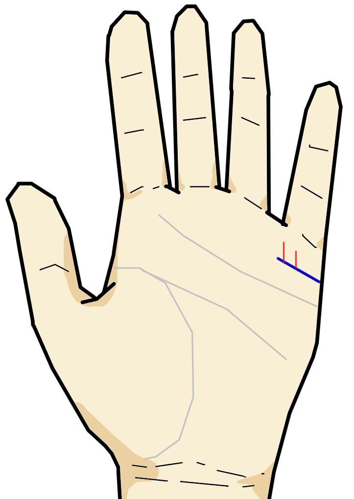 生殖線は結婚線の上に生じる短く細かい線です。髪の毛ほどの細い線ですが、その太さ強さで女の子か男の子かを判別できます。
