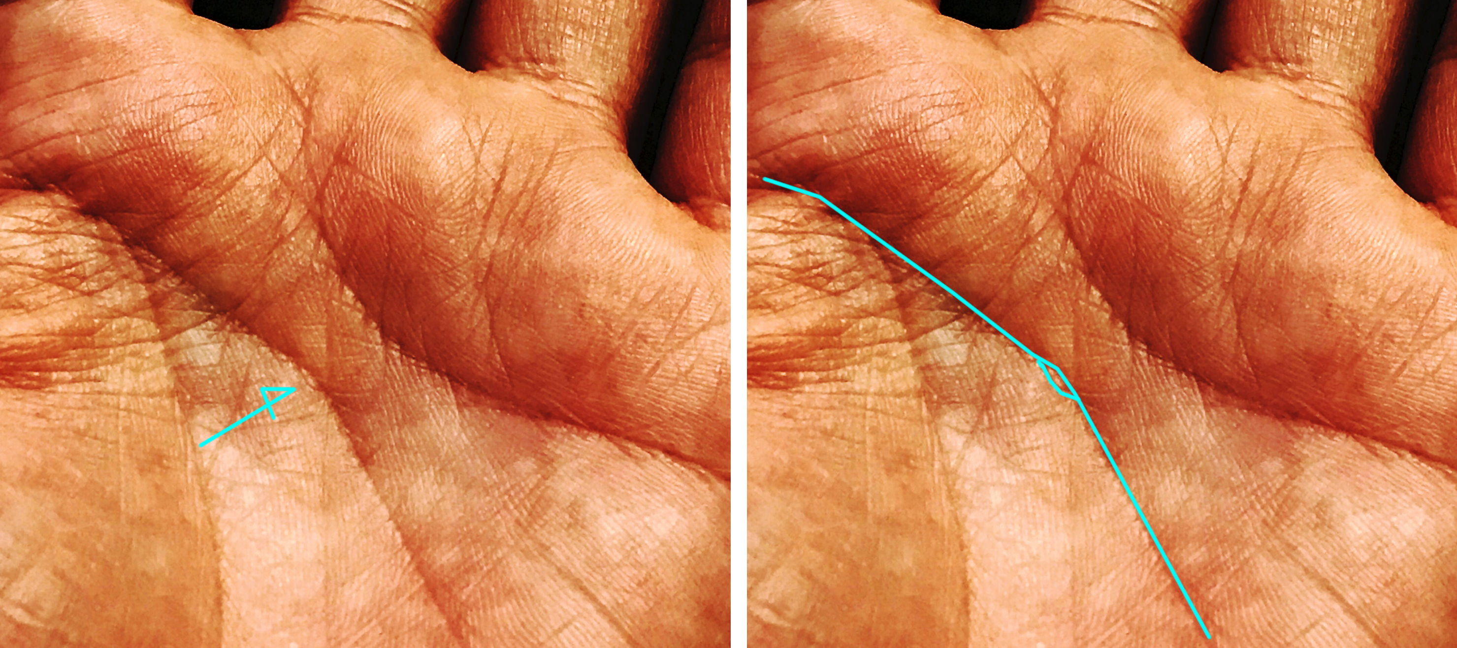 手相と眼病 網膜剥離
