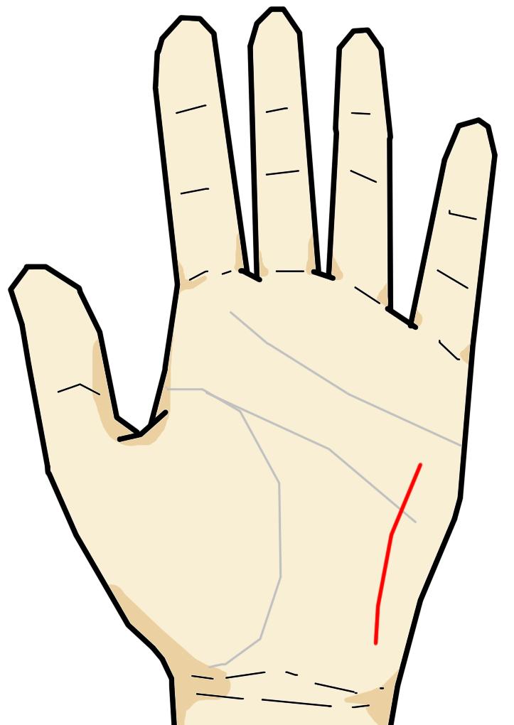 直感線  直感線は月丘に縦向きに生じる線です。健康線や放縦線が横・斜めに生じるのに対して、直感線はほぼ縦型に生じる線です。この線が生じることは極めてまれで、スポーツ選手・占い師・ギャンブラーなど鋭い直感力をもつ人に現れるとされる、特殊な相です。